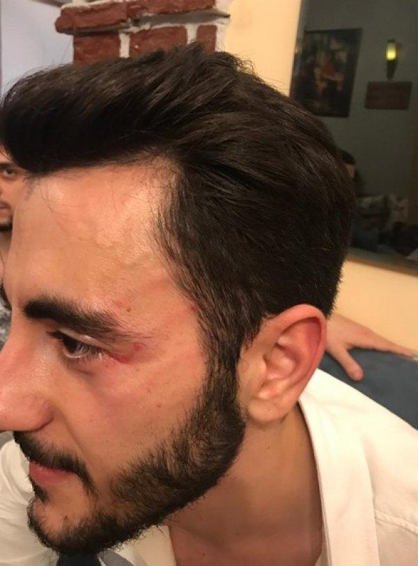 Reynmen, Show TV muhabirini dövdü