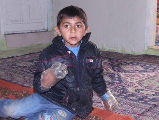 Ellerini ısıran çocuğa plastik şişeli önlem