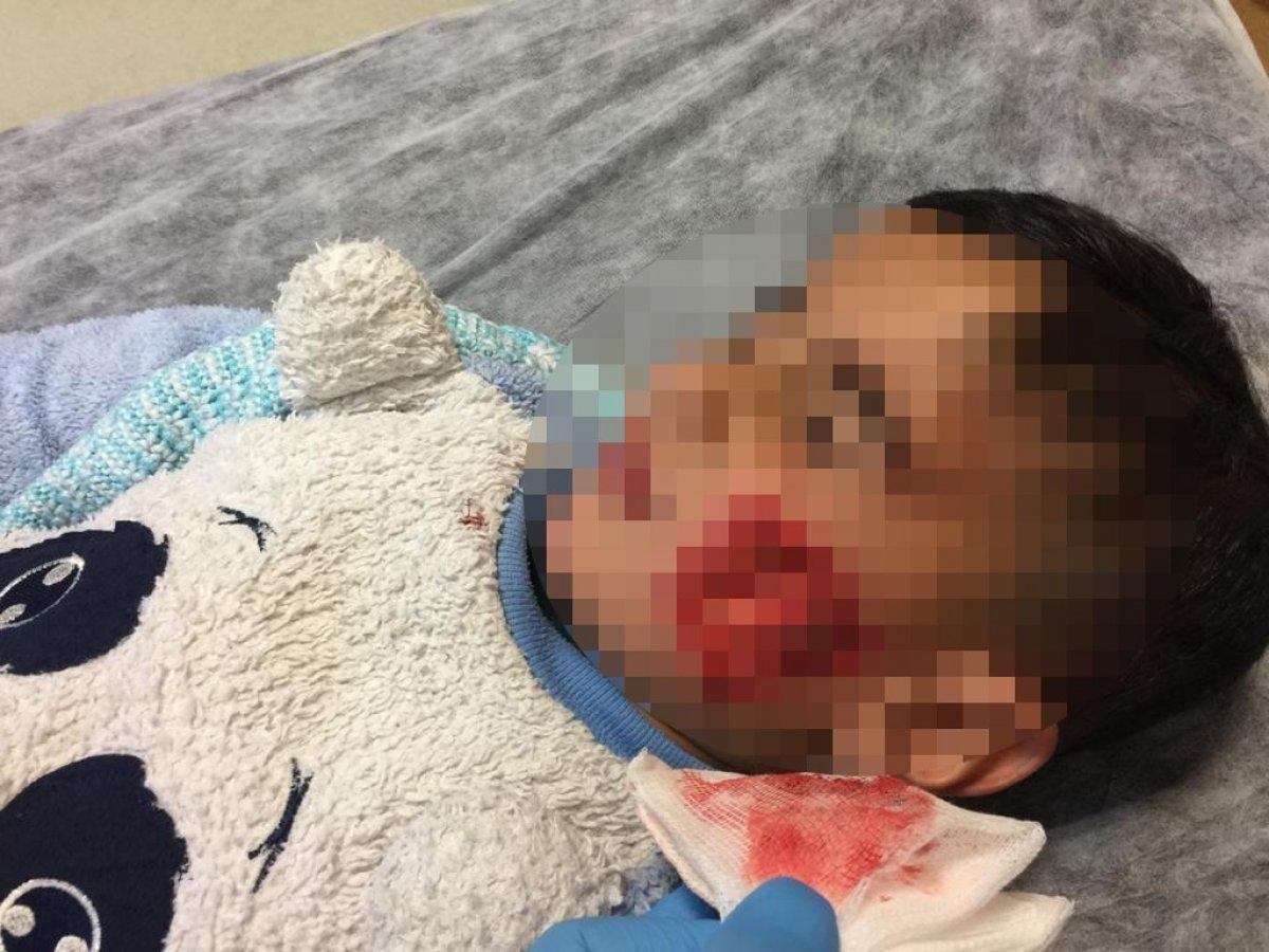 Köpeklerin saldırdığı 6 çocuktan biri hayatını kaybetti
