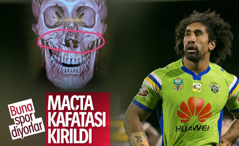 Rugby oyuncusunun kafatası ortadan kırıldı