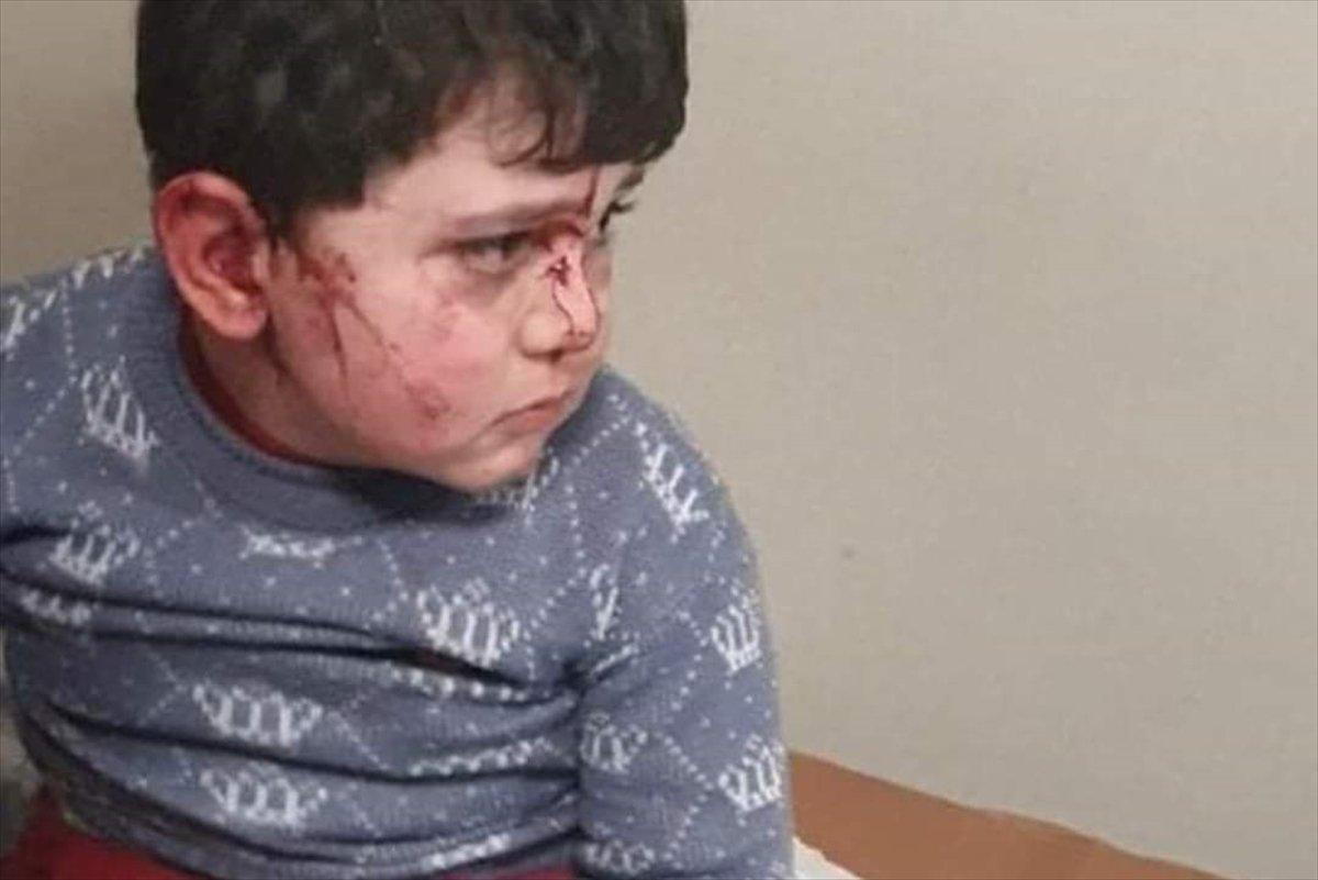 Ermenistan dan Hocalı Katliamı nı anımsatan saldırı #7