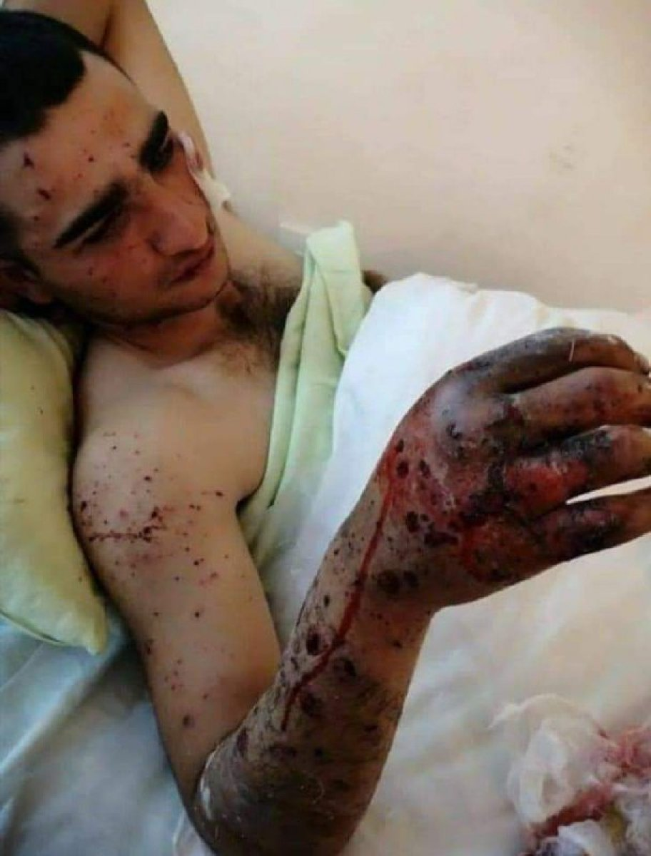 Ermenistan dan Hocalı Katliamı nı anımsatan saldırı #5