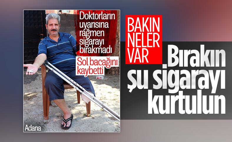 Adana'da sigara yüzünden bacağını kaybeden adam: Beni ibret alın