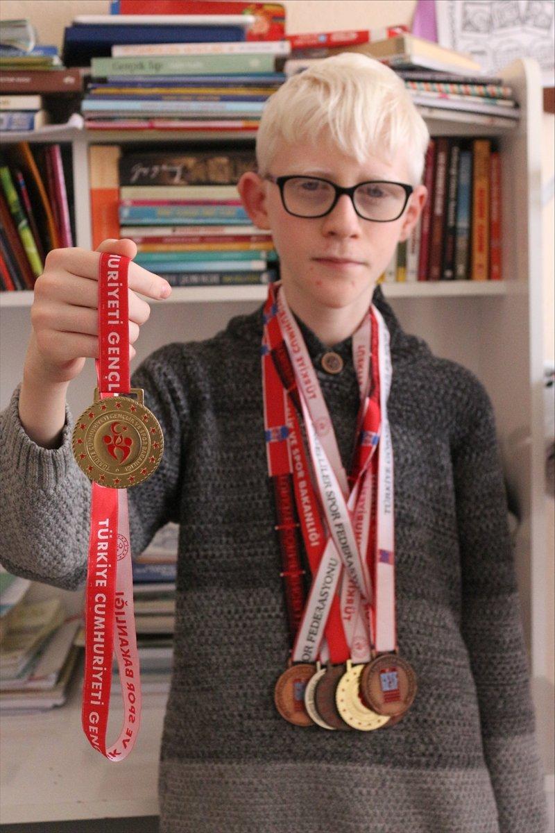 Konya da Albinizm hastası Hüseyin Ali, azmiyle kendisi gibi çocuklara cesaret veriyor #11
