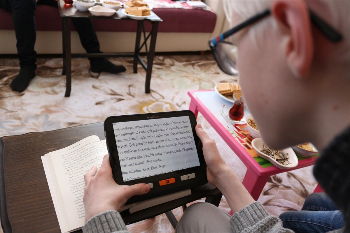 Konya da Albinizm hastası Hüseyin Ali, azmiyle kendisi gibi çocuklara cesaret veriyor #3