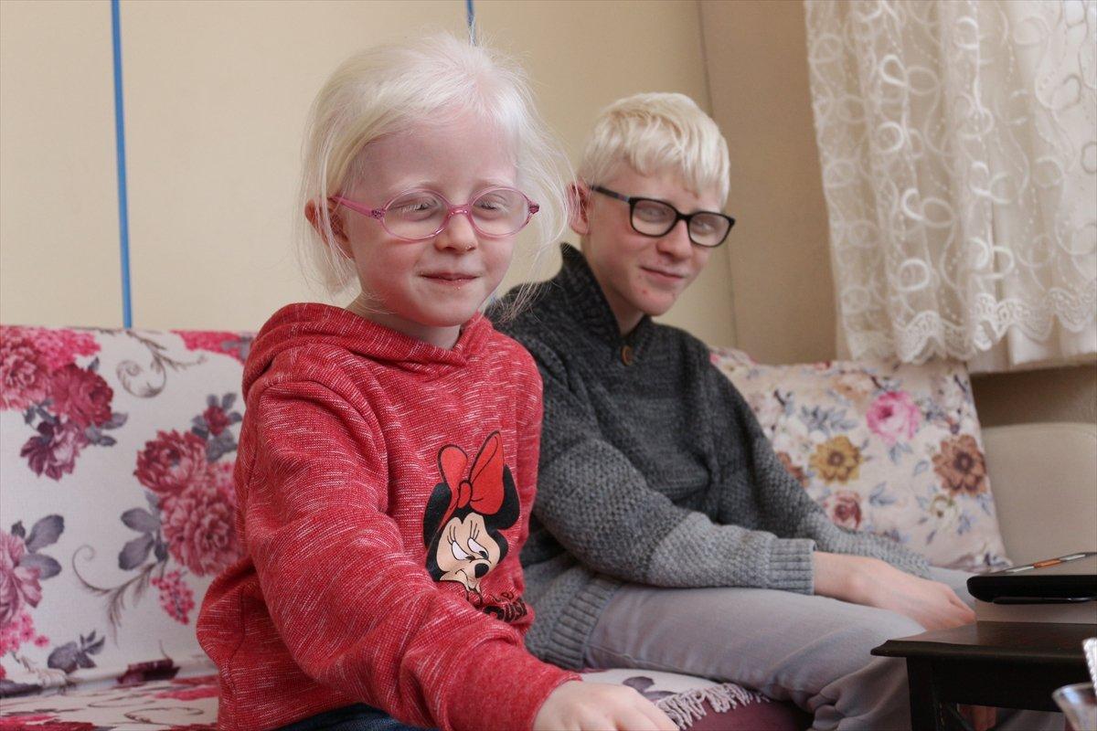 Konya da Albinizm hastası Hüseyin Ali, azmiyle kendisi gibi çocuklara cesaret veriyor #6