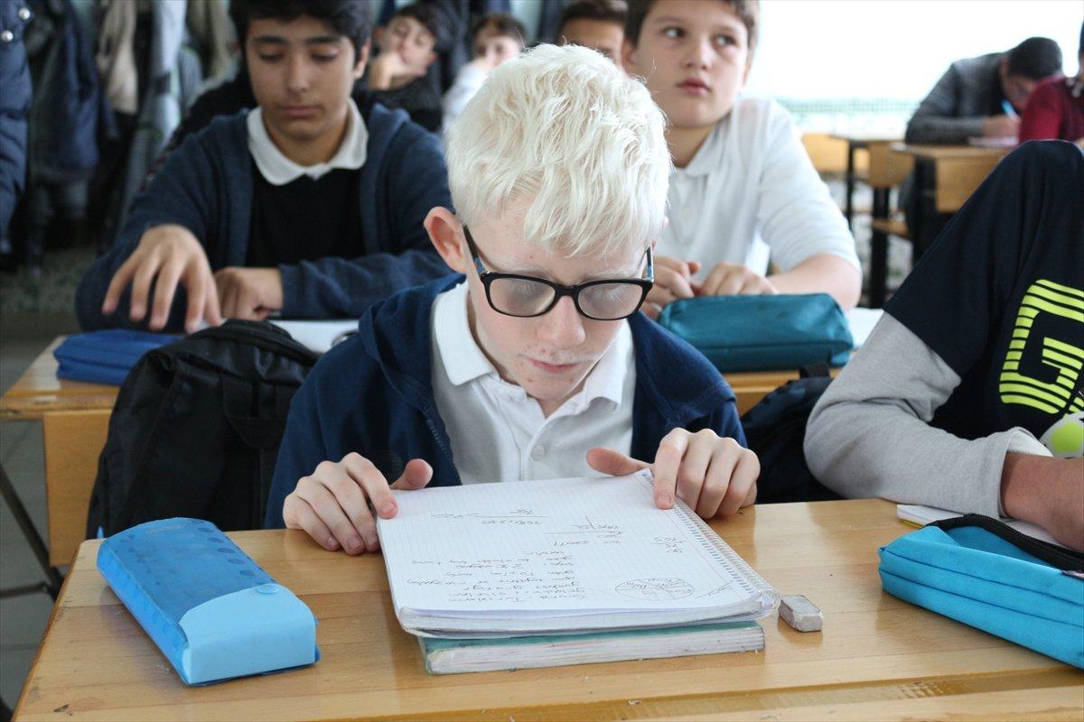 Konya da Albinizm hastası Hüseyin Ali, azmiyle kendisi gibi çocuklara cesaret veriyor #8