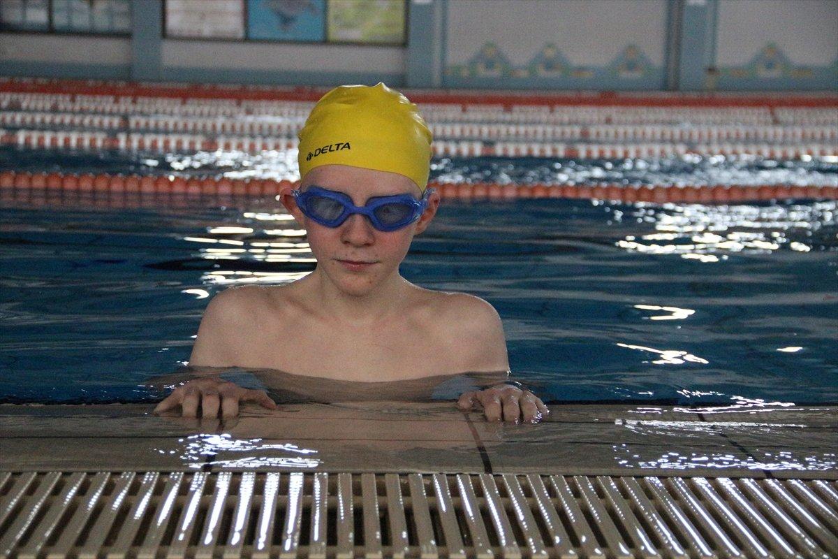 Konya da Albinizm hastası Hüseyin Ali, azmiyle kendisi gibi çocuklara cesaret veriyor #1