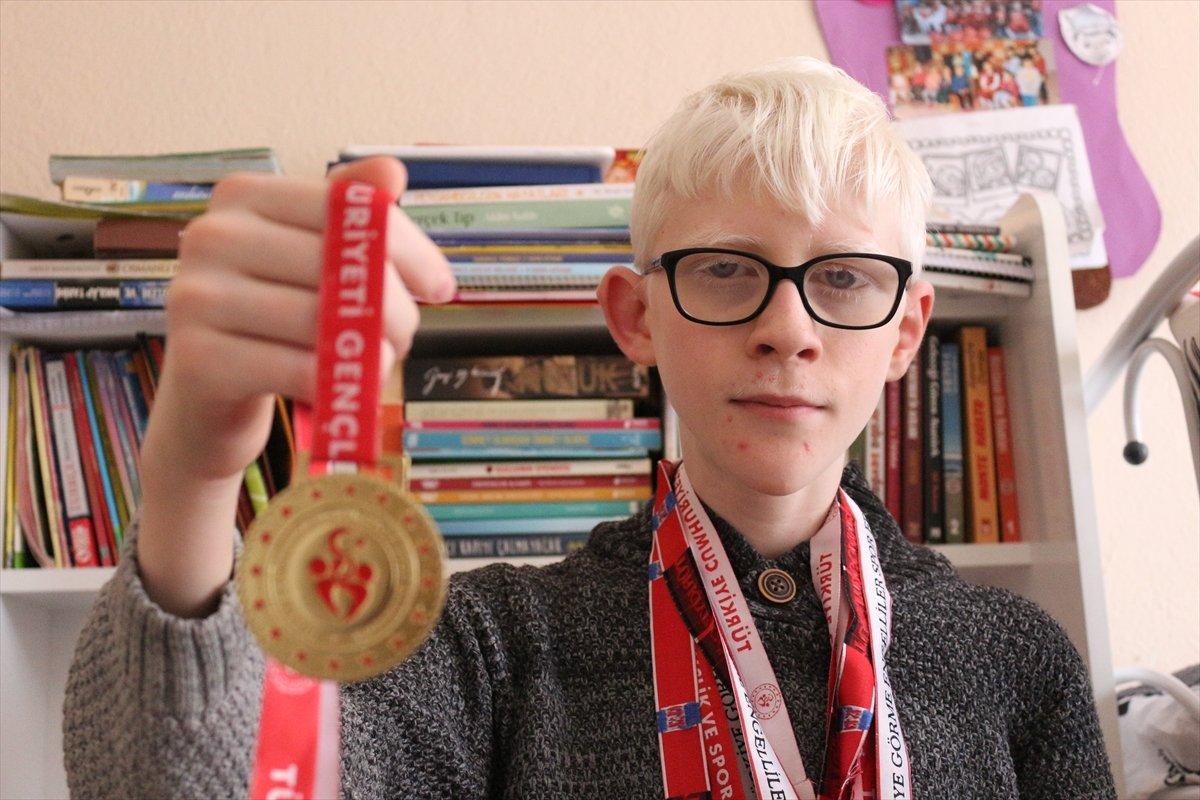 Konya da Albinizm hastası Hüseyin Ali, azmiyle kendisi gibi çocuklara cesaret veriyor #7