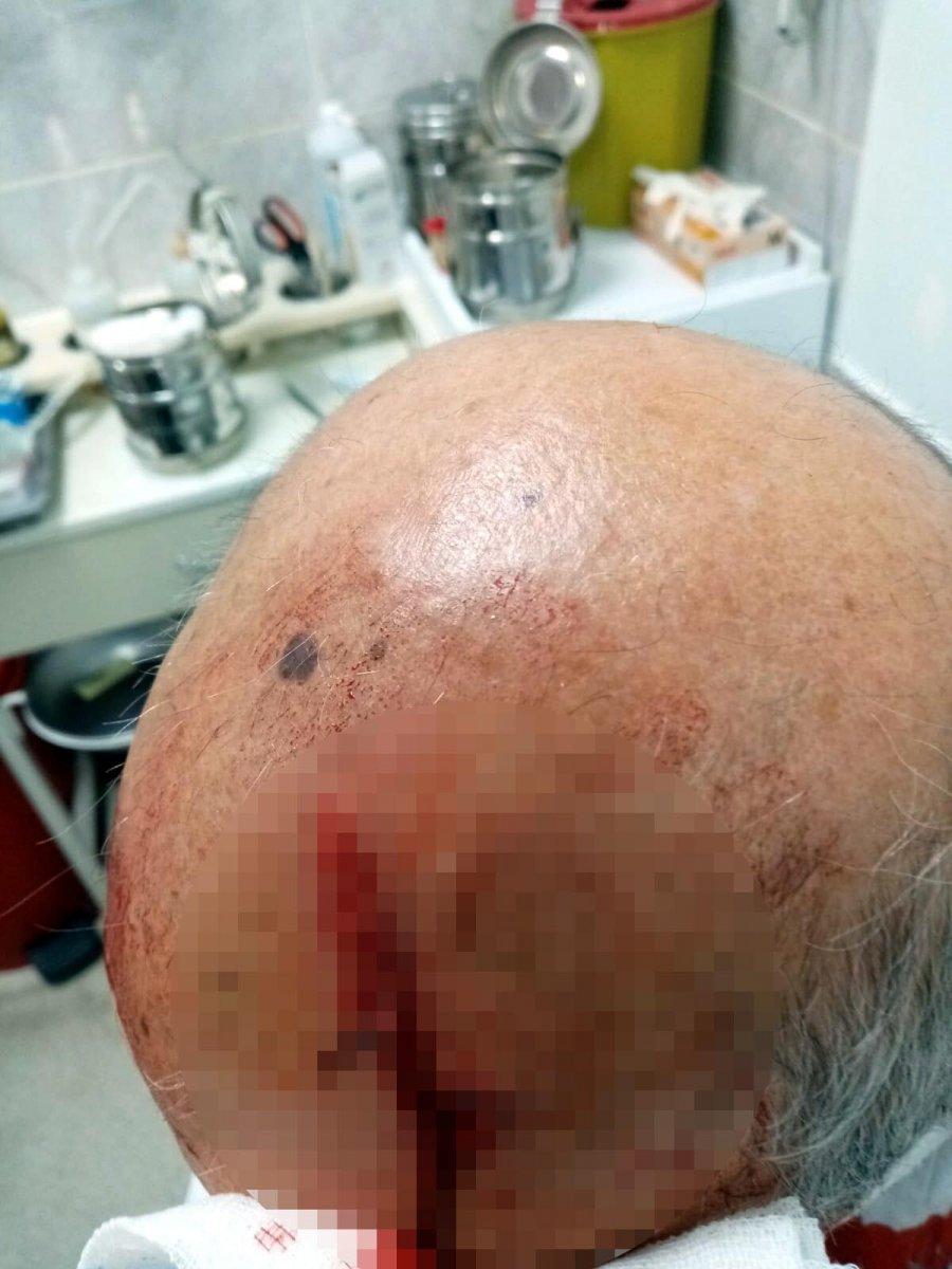 İzmir de maske uyarısı yapan doktora taşlı saldırı #3