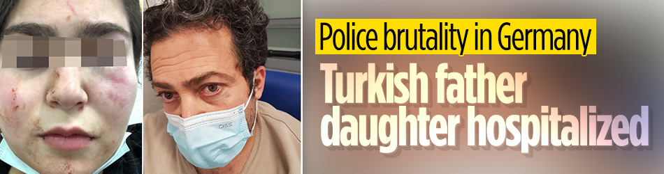 German police beat up Turkish father, daughter
