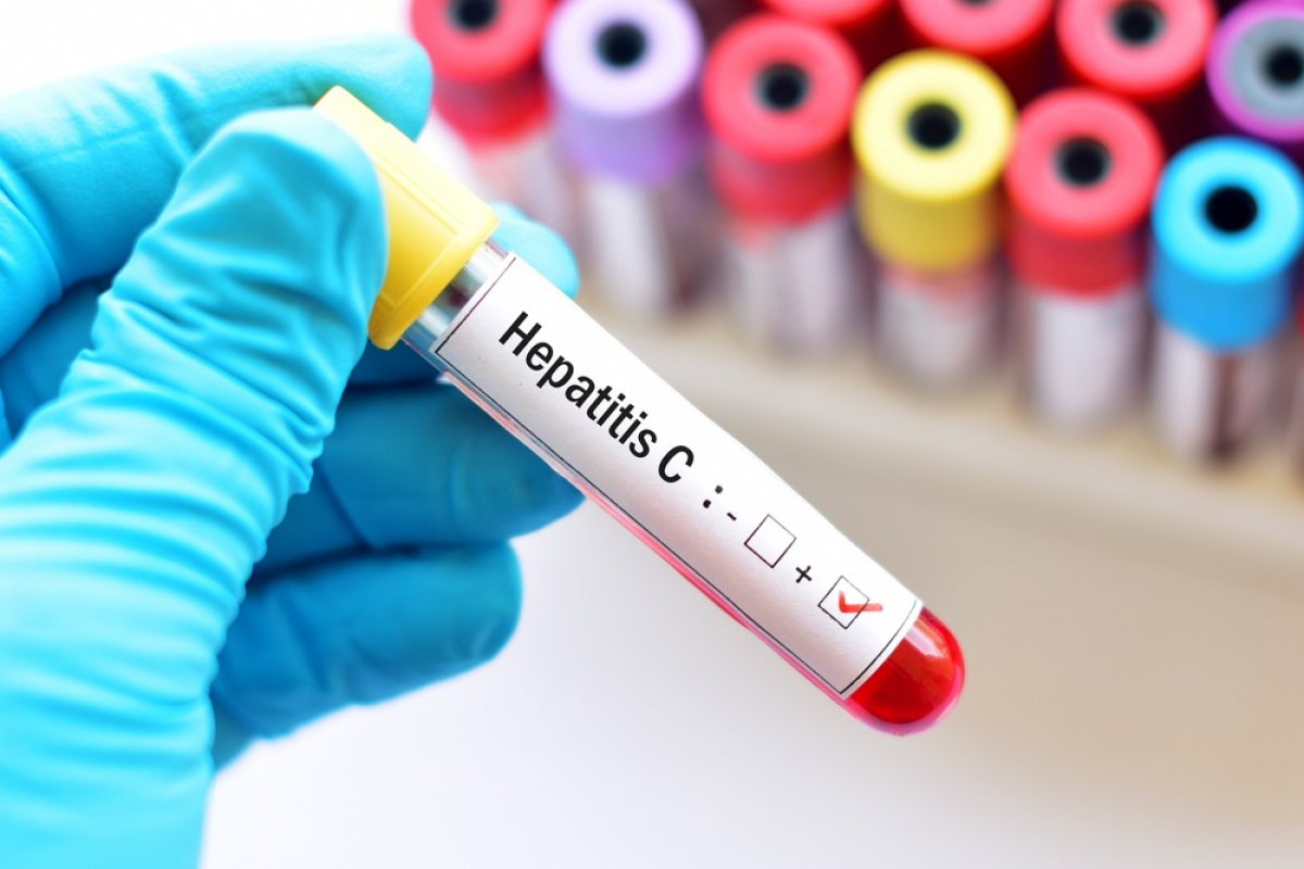hepatit c enfeksiyonundan korunmanin 5 yolu 4888