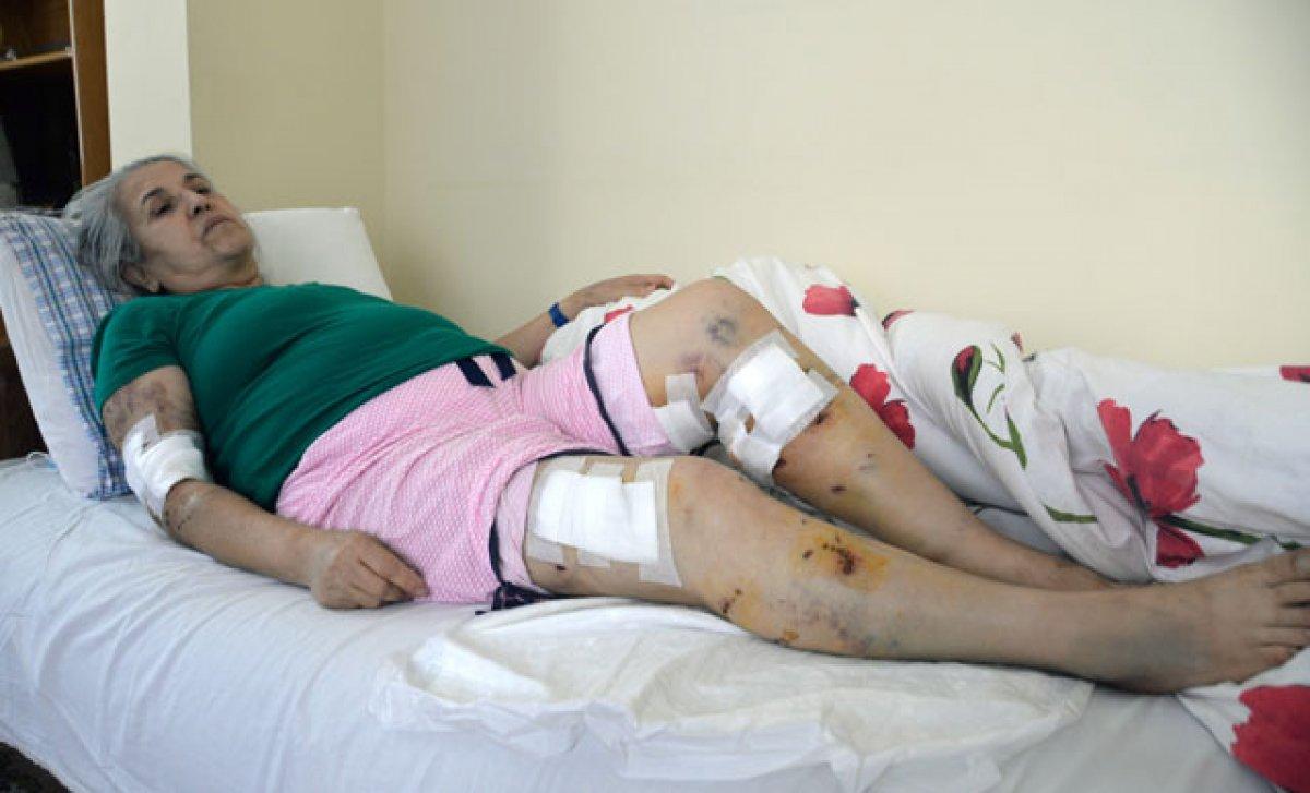 Mersin de sokak köpeklerinin saldırısına uğrayan kadın #1