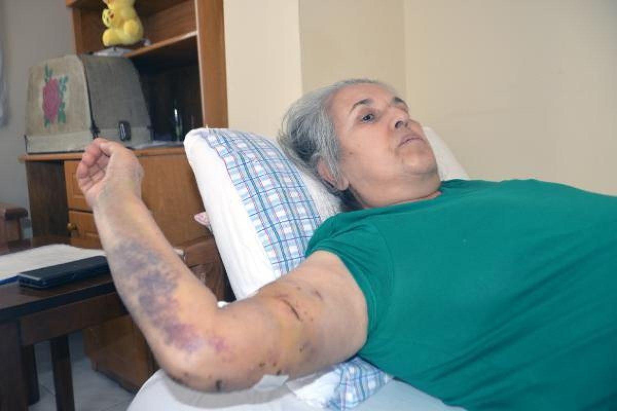 Mersin de sokak köpeklerinin saldırısına uğrayan kadın #5