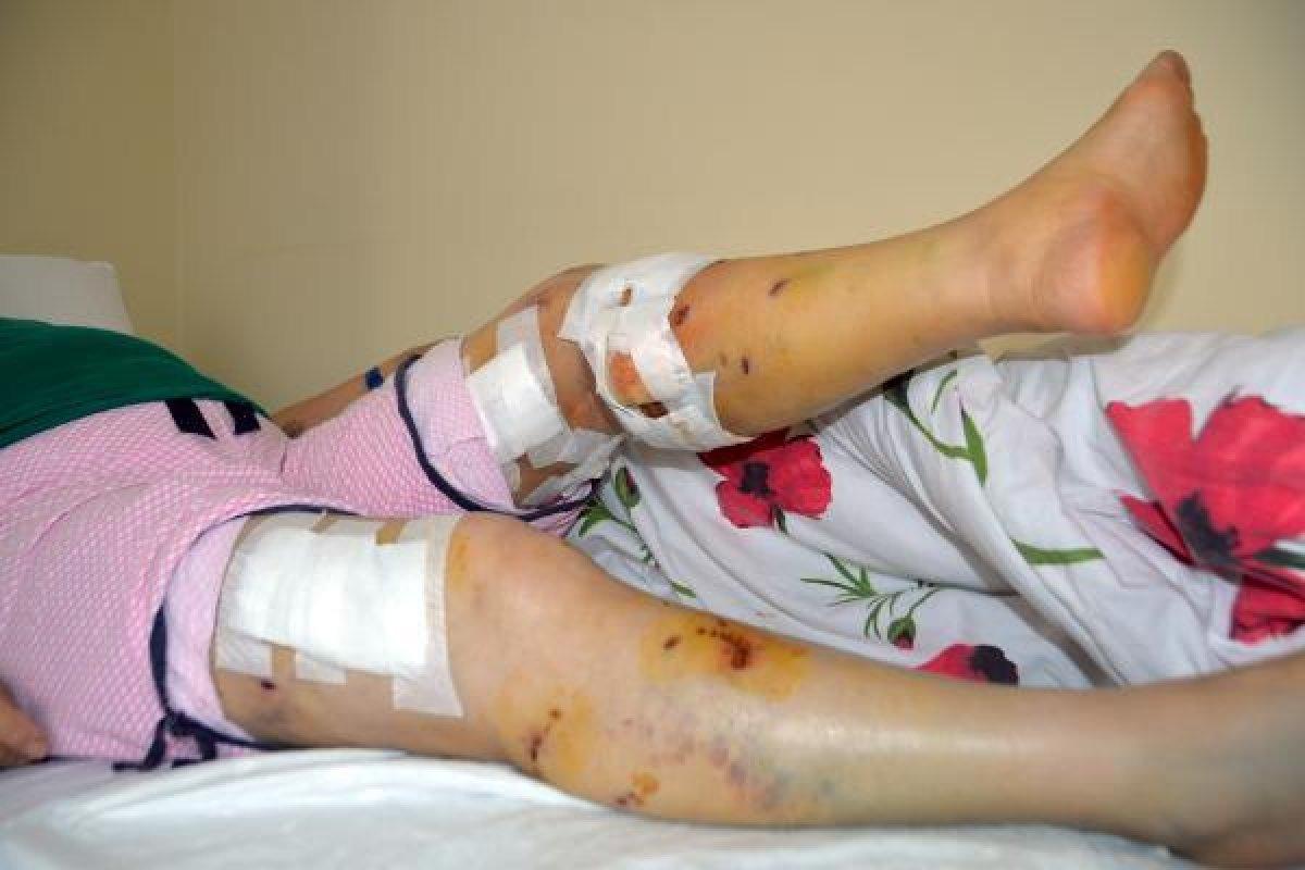 Mersin de sokak köpeklerinin saldırısına uğrayan kadın #3