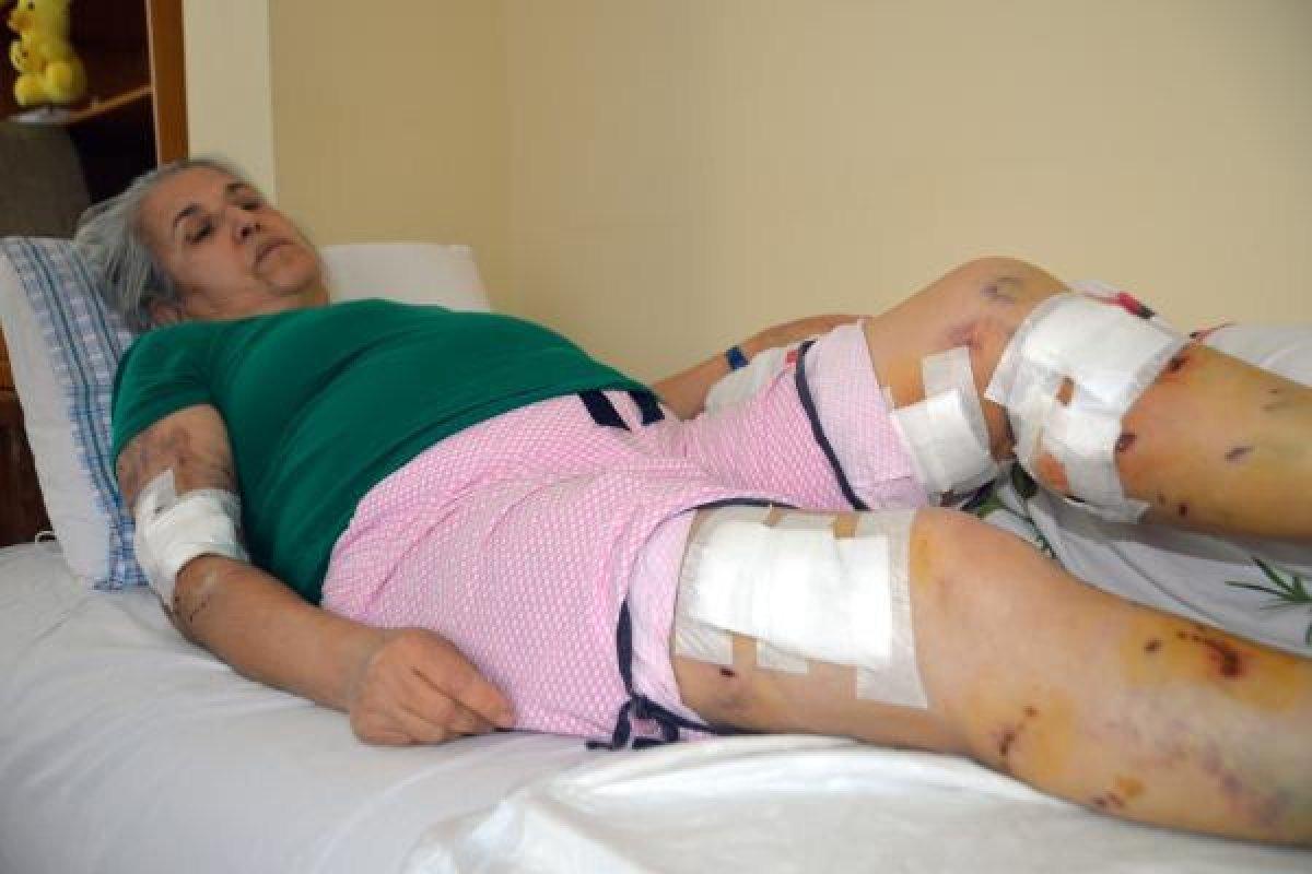 Mersin de sokak köpeklerinin saldırısına uğrayan kadın #2