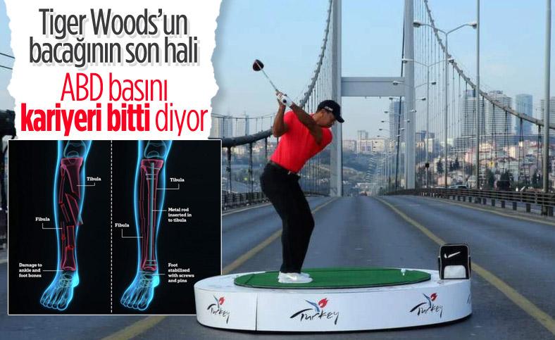 Trafik kazası geçiren Tiger Woods ameliyata alındı
