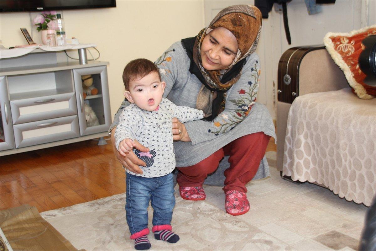 Antalyalı aile, burnu olmadan dünyaya gelen çocukları için destek bekliyor #3