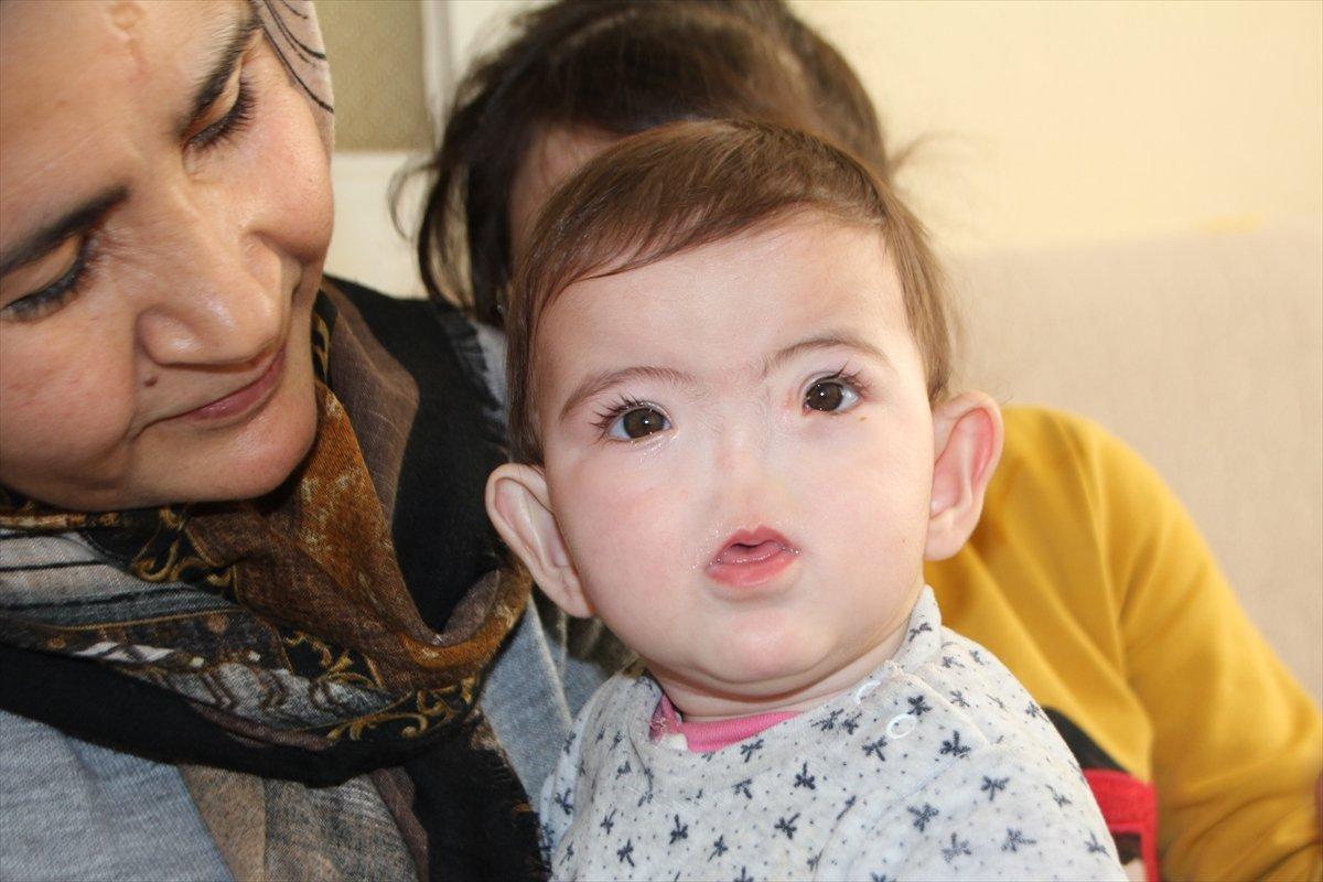 Antalyalı aile, burnu olmadan dünyaya gelen çocukları için destek bekliyor #2