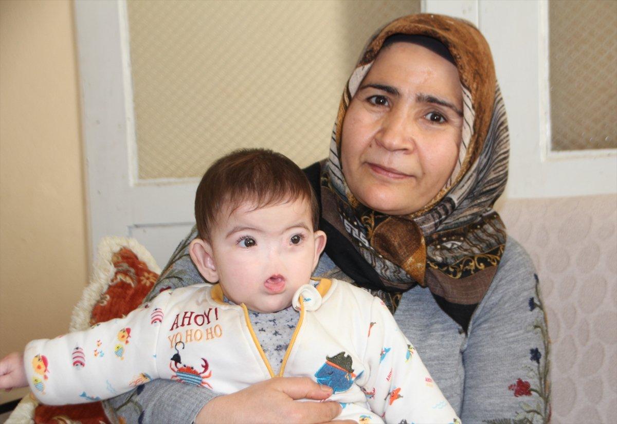 Antalyalı aile, burnu olmadan dünyaya gelen çocukları için destek bekliyor #1