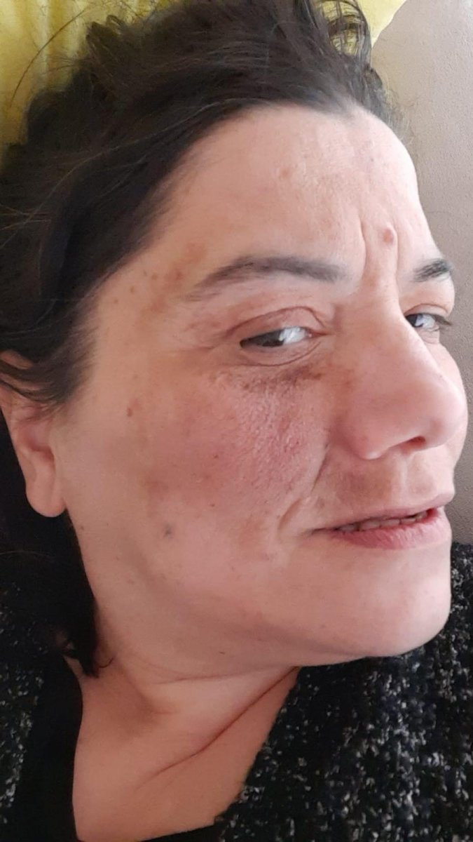 İzmit'te damak tedavisi için diş hastanesine gitti, yüz felci oldu #2