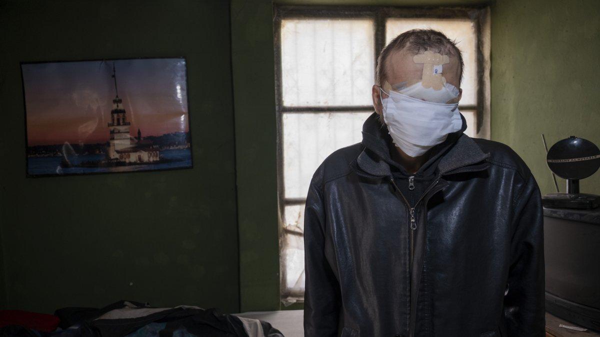 Konya da cilt kanseri nedeniyle yüzünü kaybetti, hayatı kabusa döndü #2