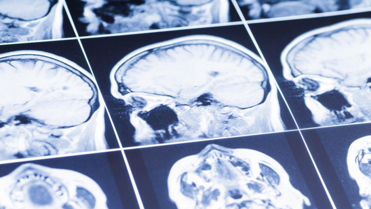 Koronavirüs geçiren 3 kişiden 1 inde beyin bozukluğu gelişiyor #1
