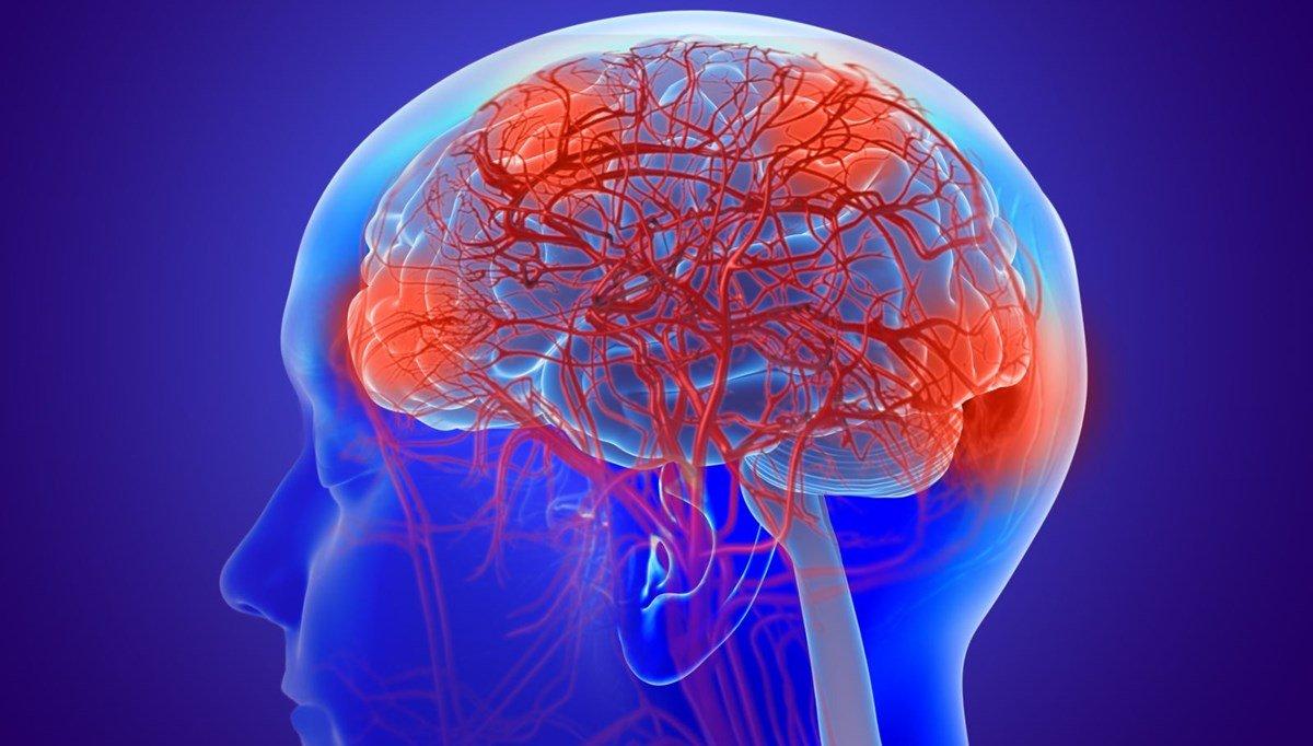 Koronavirüs geçiren 3 kişiden 1 inde beyin bozukluğu gelişiyor #2