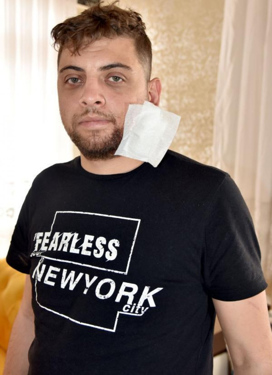 Antalya da, kız arkadaşını döven şahsa müdahale edince yüzü parçalandı  #1