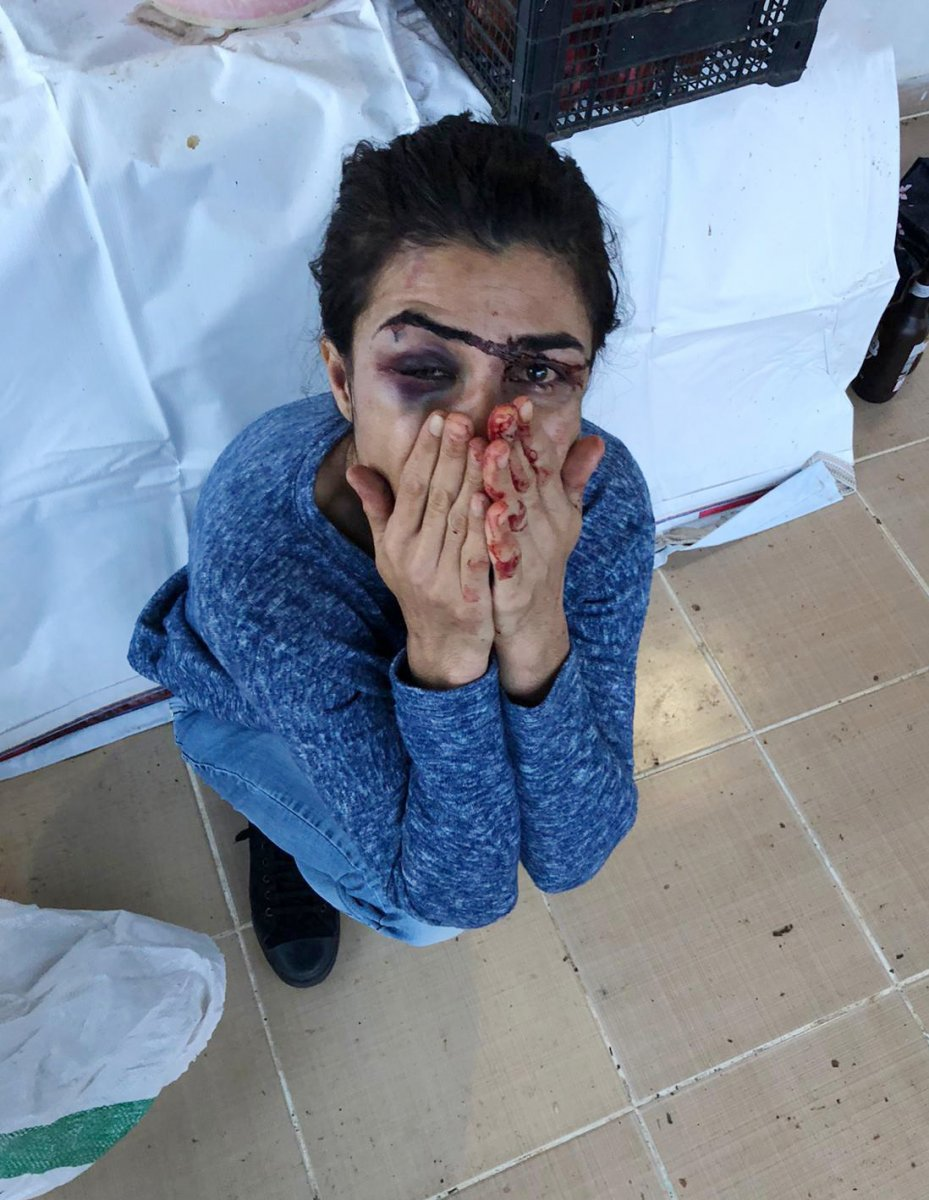 Antalya da işkenceci eşini öldüren Melek İpek serbest bırakıldı #5