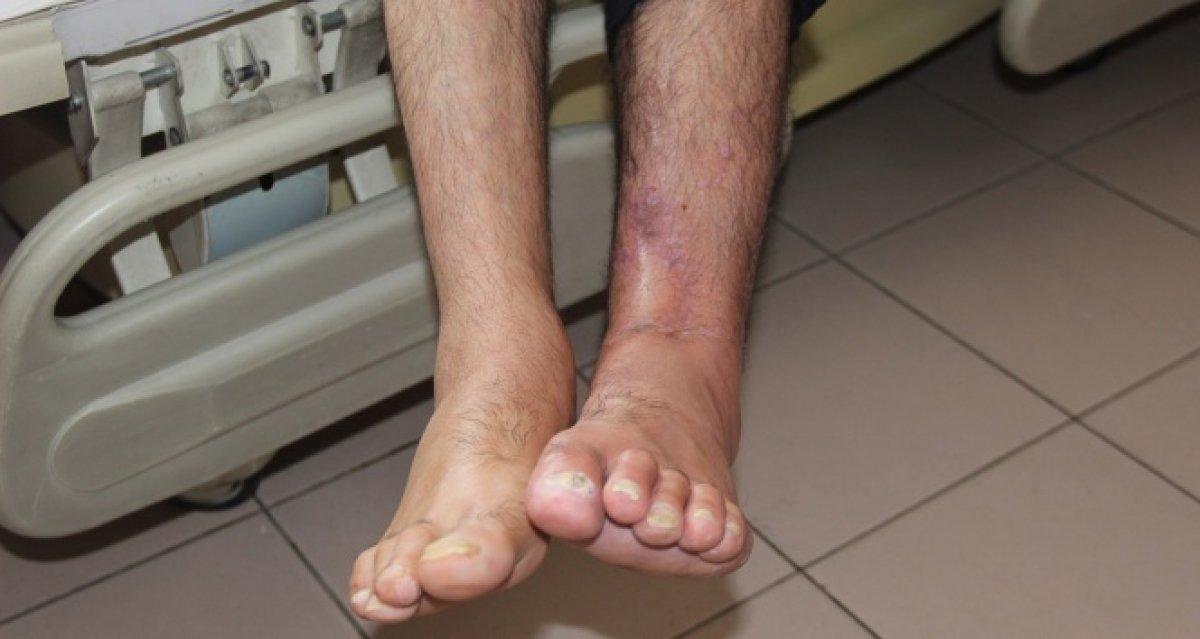 Ayak şişmesinin 6 olası nedeni #5