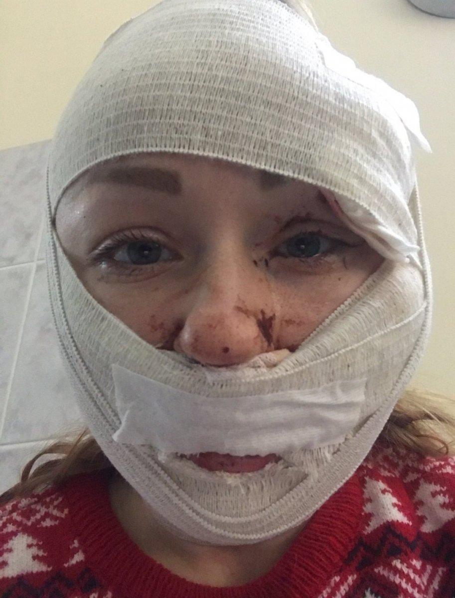 İstanbul'da eşinin falçatalı saldırısına uğradı: Yaşamak istiyorum #1