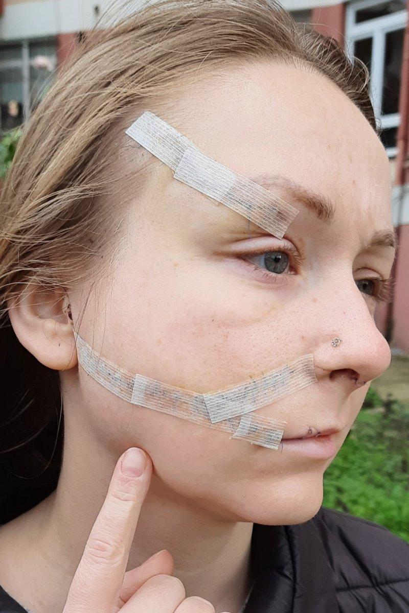 İstanbul'da eşinin falçatalı saldırısına uğradı: Yaşamak istiyorum #2