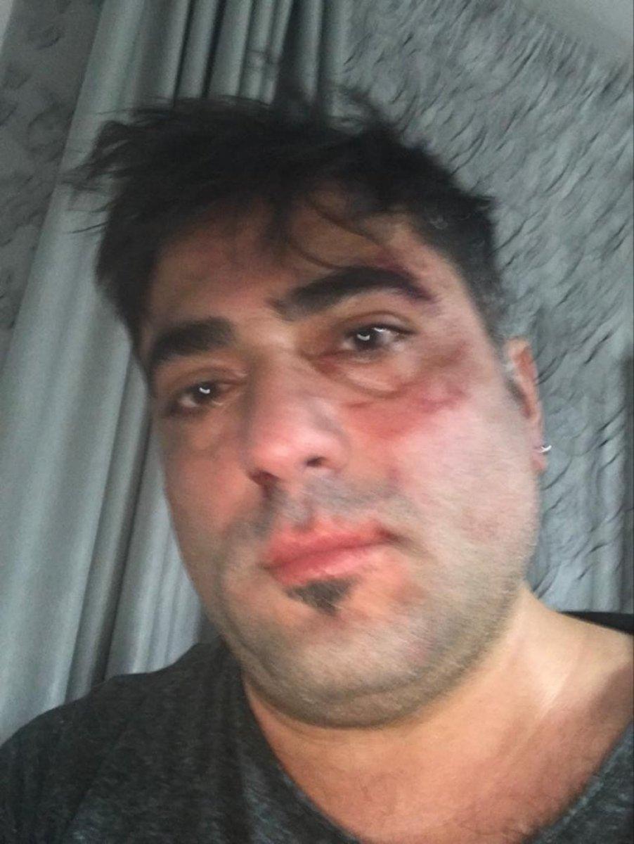 İzmir'de Belaruslu kadının, Türk eşine saldırma anı #4