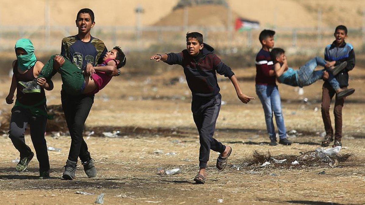 Tedavi için Mısır'da bulunan Gazzeli yaralılardan biri 5 yaşında #1