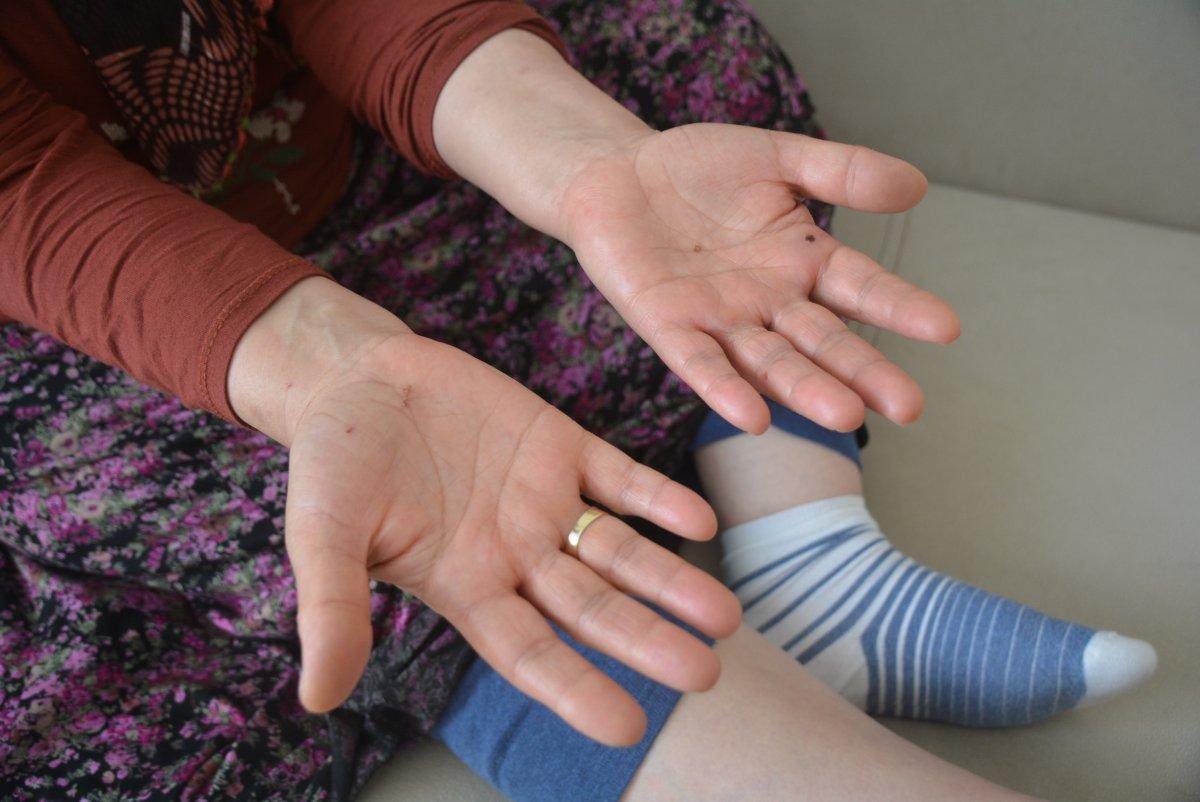Balıkesir de engelli kadına darp: Bana çok işkence yaptılar  #5