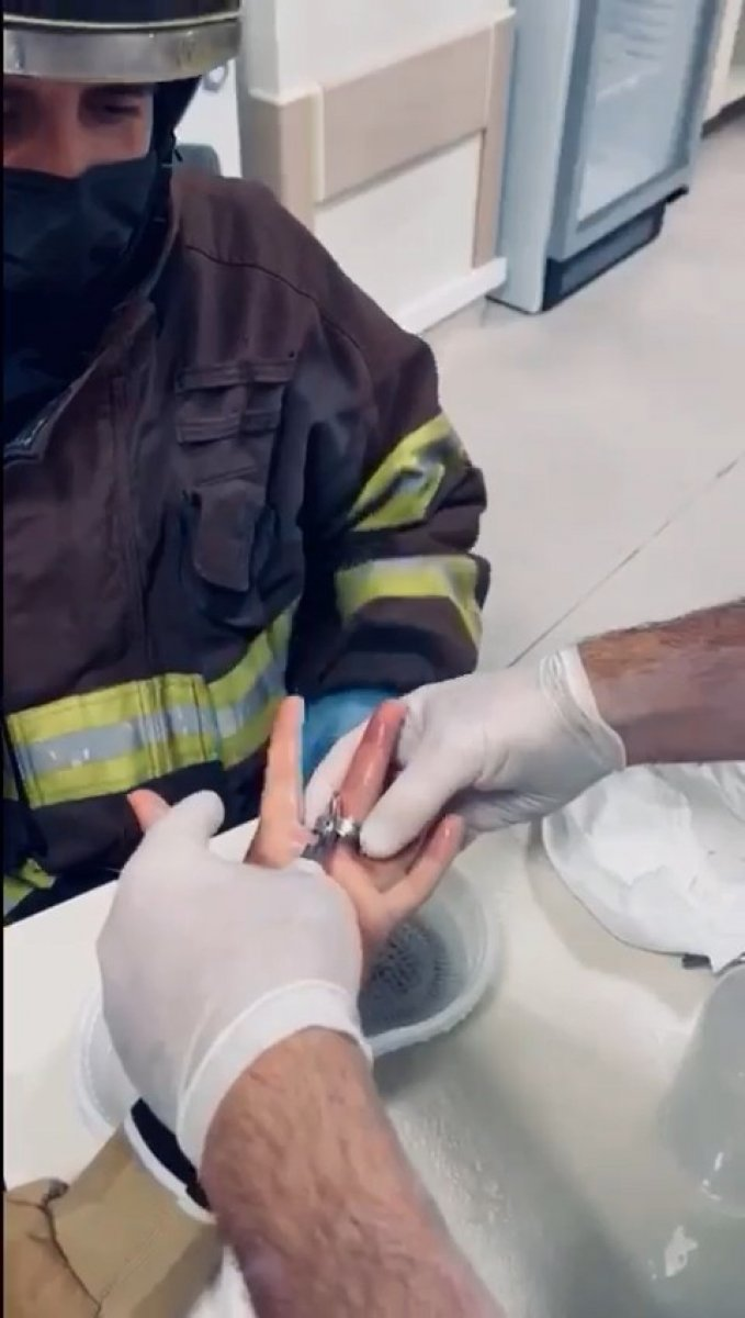 Kocaeli de parmağına sıkışan yüzüğü itfaiye ekipleri keserek çıkarttı #2
