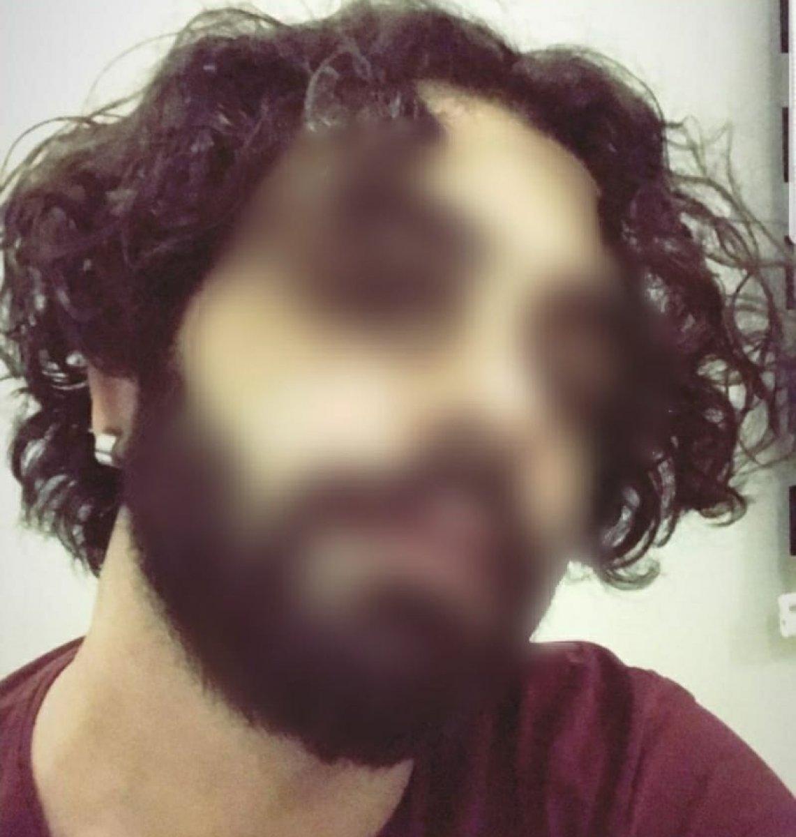 Adana da cinsel şiddet iddiasına tutuklama  #3