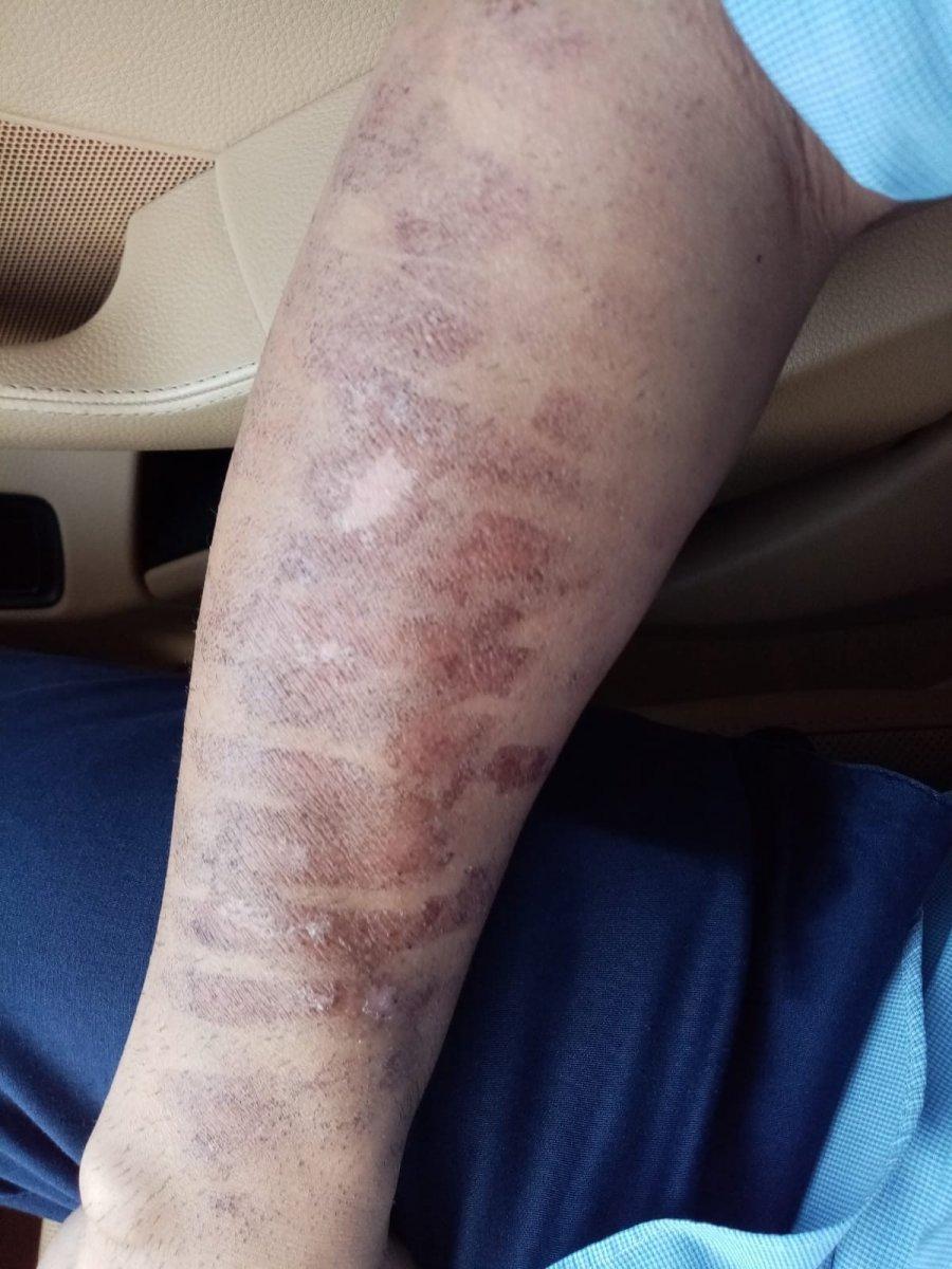 Kahramanmaraş ta lazer epilasyonda kolları yandı #2