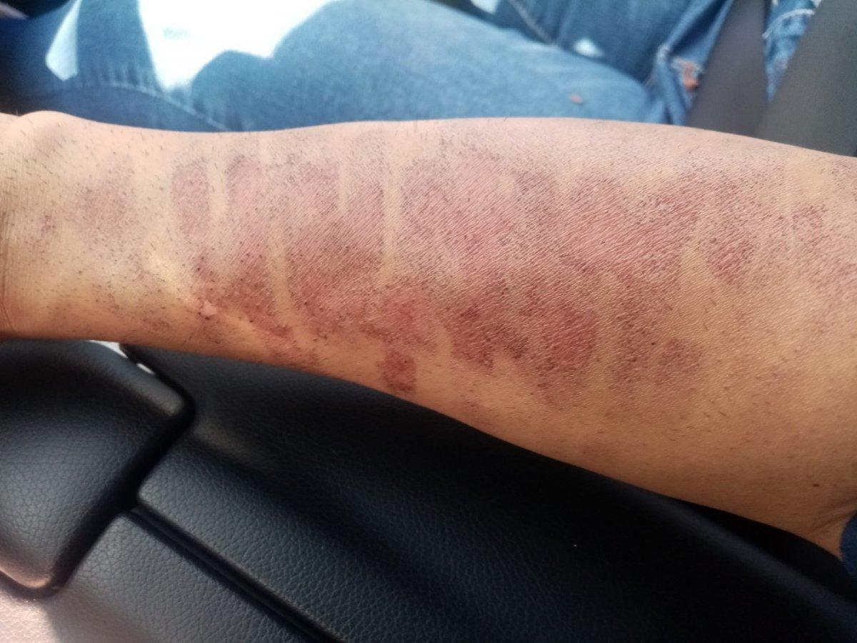 Kahramanmaraş ta lazer epilasyonda kolları yandı #1
