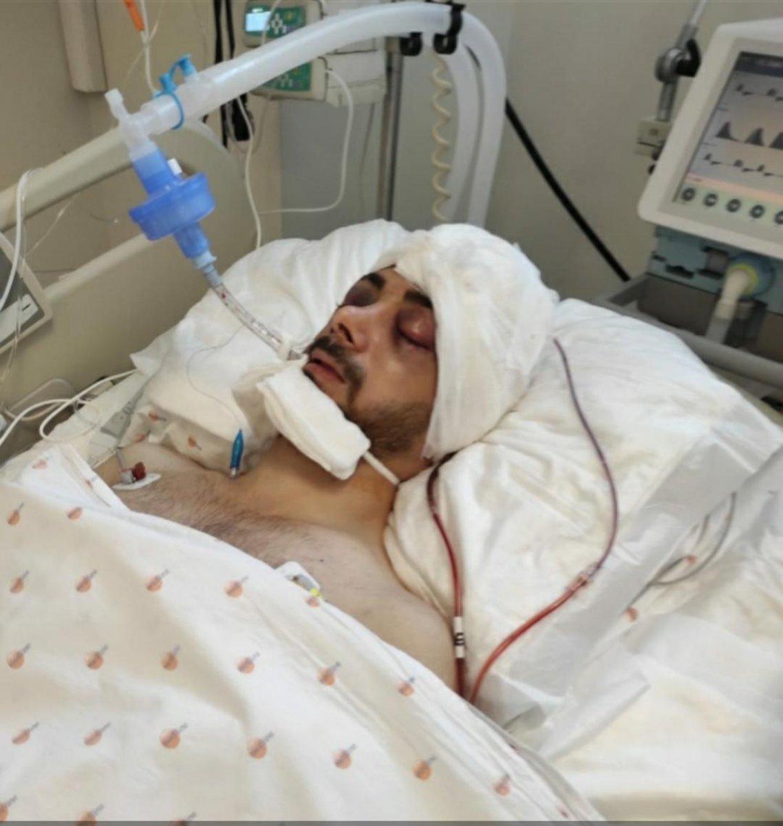 Adana da attan düşen jokey 41 gün sonra uyandı  #7