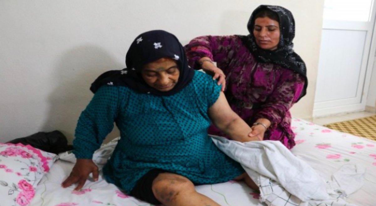 Adana da yaşlı kadın yoğun bakımda darbedildi #1