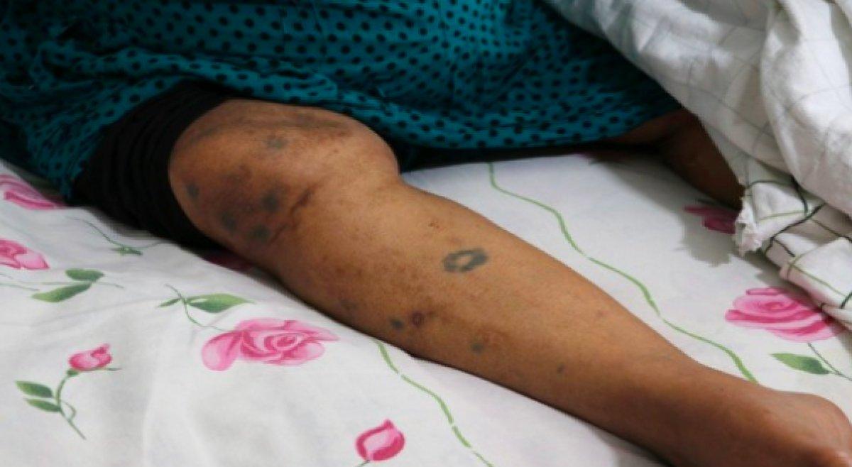 Adana da yaşlı kadın yoğun bakımda darbedildi #2