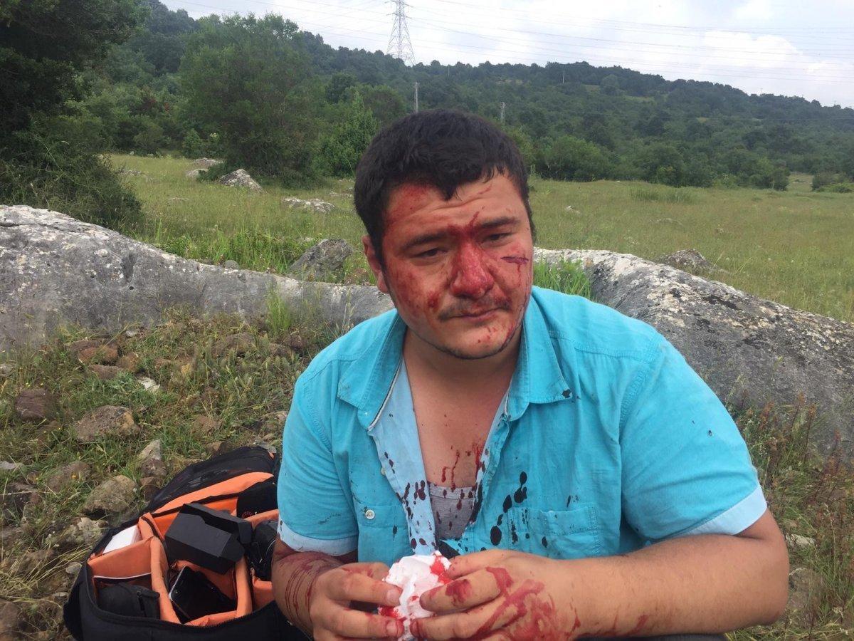Saldırıya uğrayan İHA muhabiri Mustafa Uslu, görevinin başına döndü  #1