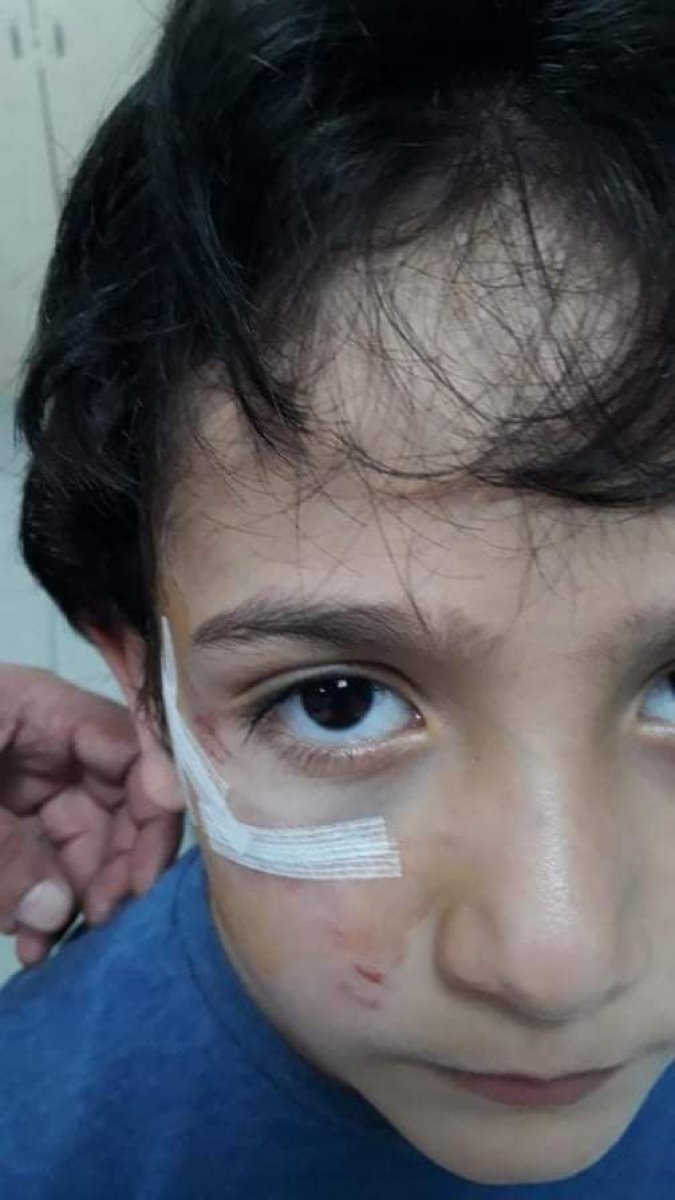 Bursa'da sokak köpeği 8 yaşındaki çocuğa saldırdı  #2