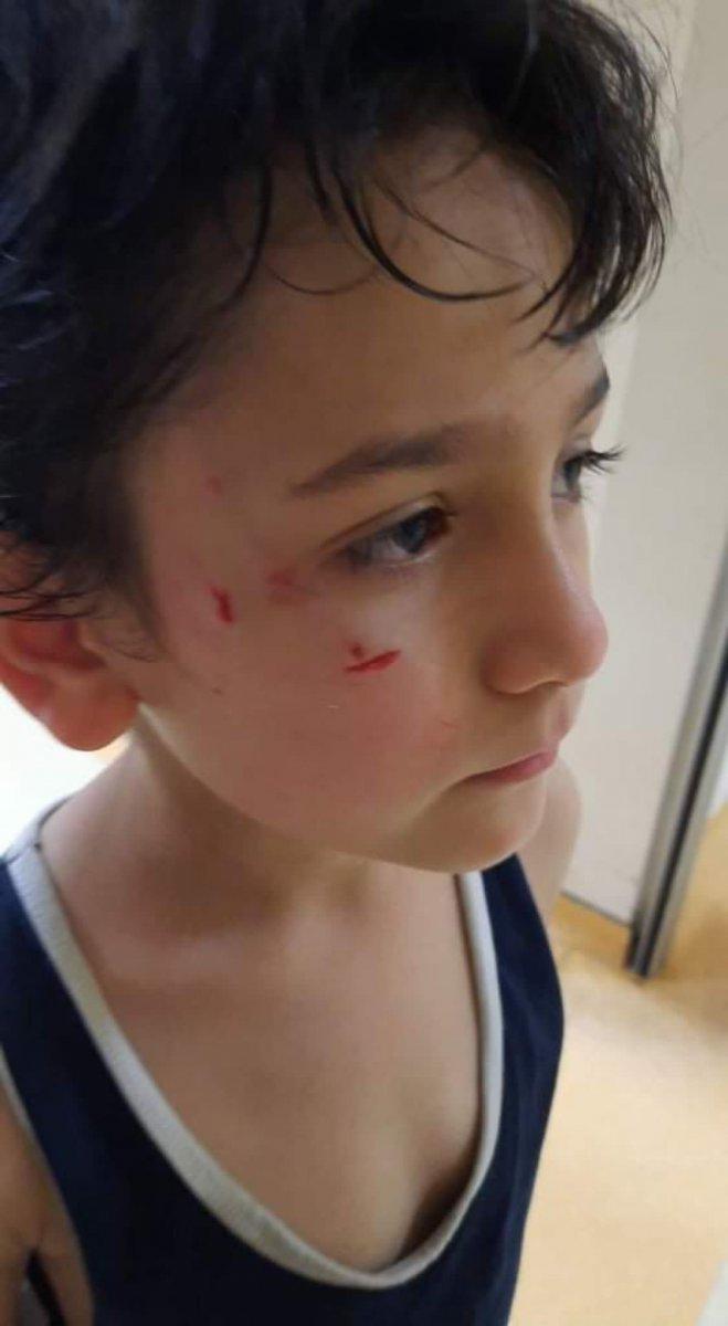 Bursa'da sokak köpeği 8 yaşındaki çocuğa saldırdı  #3