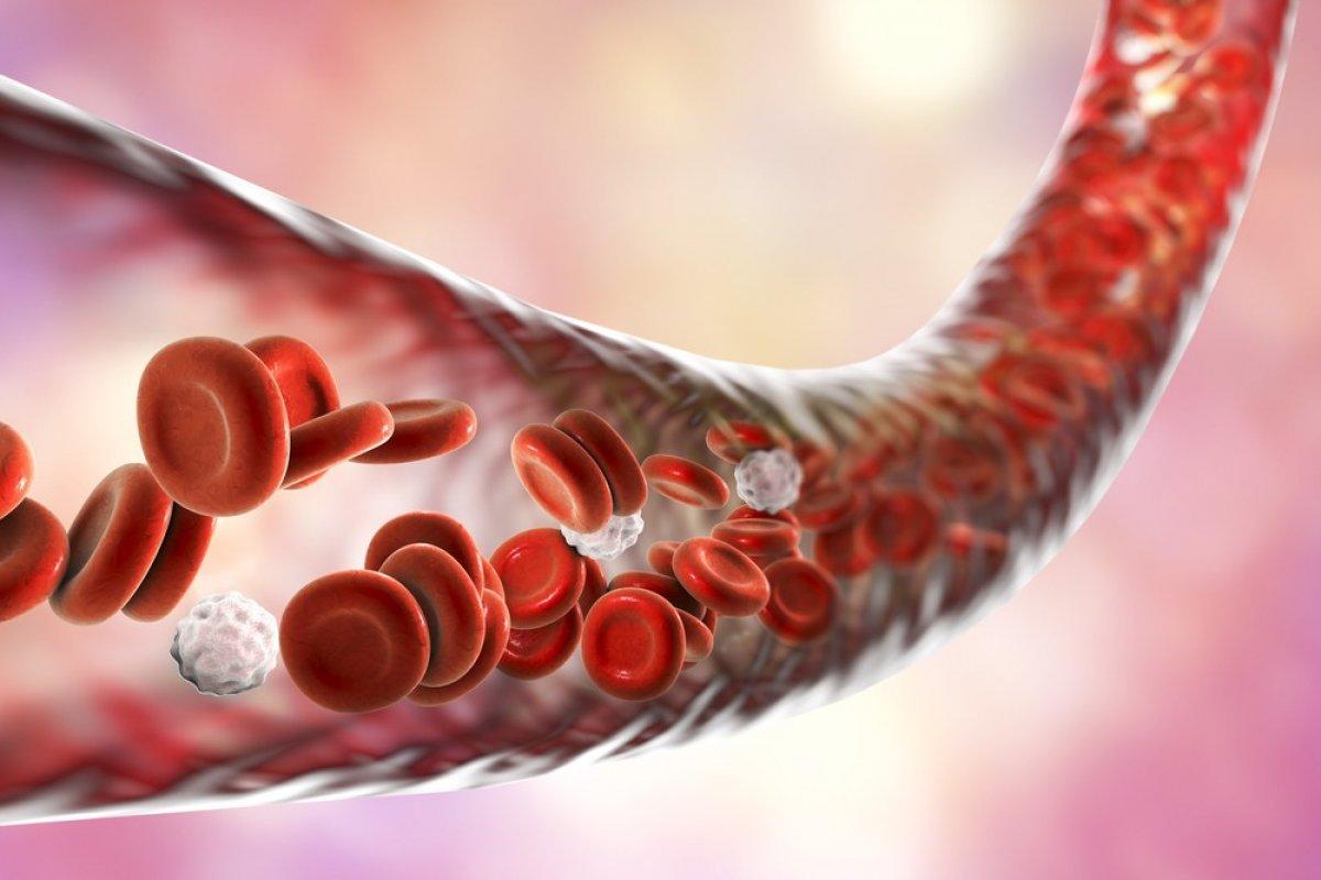 Yüksek kolesterolün belirtileri ve kolesterolü düşürmek için ipuçları #1