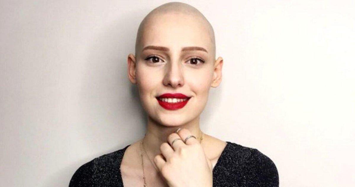 Naz Çağla Irmak yeni filmi için saçlarını kazıttı  #2