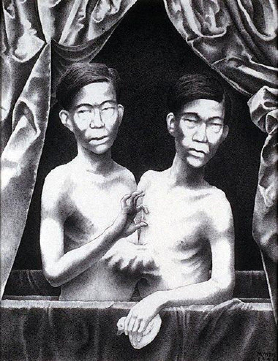 Tek bedende iki arzu: Siyam İkizleri Chang ve Eng Bunker'in hikayesi #1