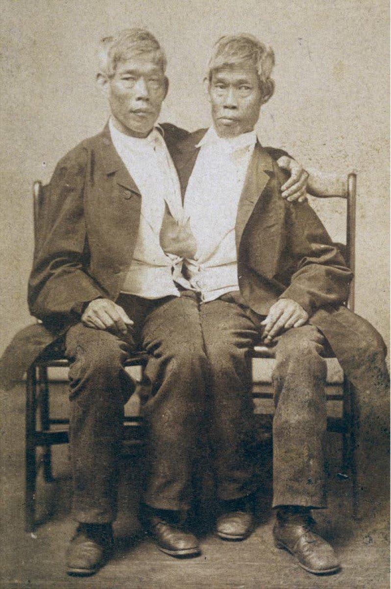 Tek bedende iki arzu: Siyam İkizleri Chang ve Eng Bunker'in hikayesi #4